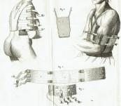 Traite des Bandages et Appareils a l'Usage des Chirurgiens Armees – J.B.J. Thillaye – 1809